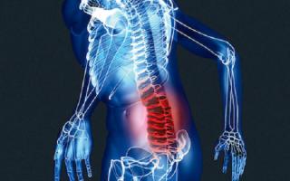 Остеохондроз пояснично-крестцового отдела позвоночника – причины, симптомы, лечение и профилактика