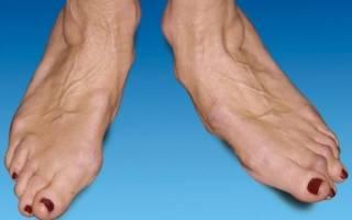 Артроз стопы – причины, первые симптомы и проявления, диагностика, лечение медикаментами и гимнастикой