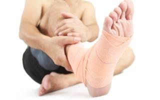 Что делать при вывихе стопы – симптомы и признаки, первая помощь