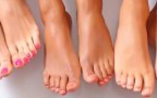 Вросший ноготь на большом пальце ноги – лечение