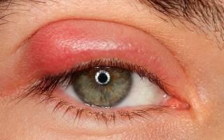 Как вылечить ячмень на глазу быстро – за один день