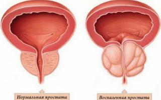 Симптомы простатита и его лечение у мужчин: средства и методы
