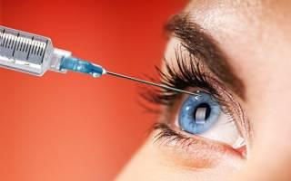 Опасны ли уколы в глаза: показания к инъекциям и осложнения