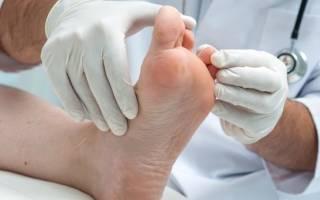 Экзема на ногах – причины и как лечить заболевание. Мази и народные средства для лечения экземы