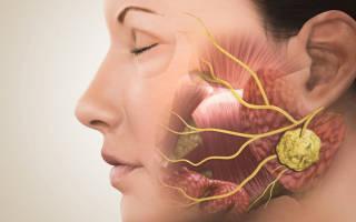 Что такое абсцесс: симптомы и лечение