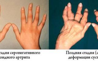 Серонегативный спондилоартрит – причины возникновения, проявления, диагностика и методы лечения