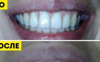 8 способов отбелить зубы в домашних условиях быстро и эффективно
