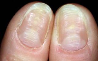 Почему ногти становятся волнистыми на пальцах рук и ног