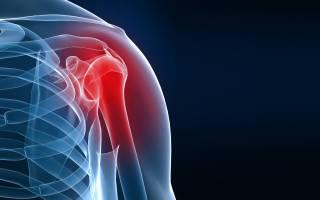 Артроз плечевого сустава – симптомы и лечение: домашние и хирургические методы