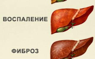 Гепатоз печени: лечение и симптомы