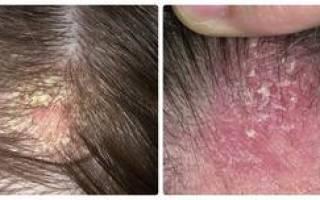 Себорея кожи головы: средства для лечения