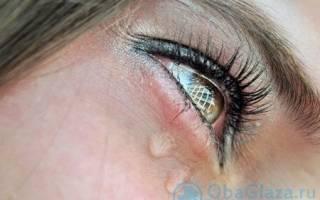 Как снять отек с глаз после слез