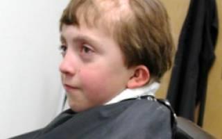 Очаговая алопеция: причины и лечение