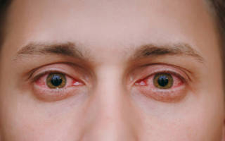 Аллергический дерматит на глазах: лечение заболевания