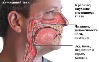 Аллергия на крем – симптомы и причины возникновения, методы лечения и профилактические меры