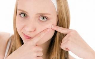 Угревая сыпь на лице – причины и способы лечения у подростков и взрослых