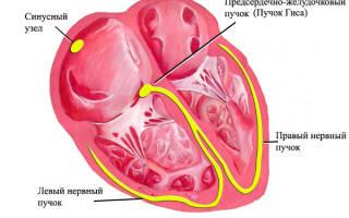 Что такое брадикардия сердца – чем она опасна. Лечение брадикардии народными средствами и препаратами