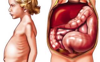 Болезнь Гиршпрунга – лечение и отзывы после операции. Симптомы, причины у детей и взрослых