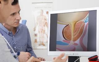 Симптомы уреаплазмы у мужчин