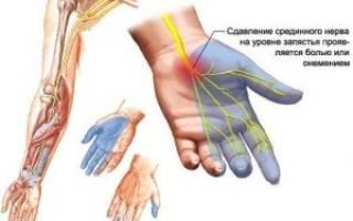Почему немеет правая рука и пальцы