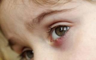 Фурункул на глазу у ребенка или взрослого – причины появления и стадии развития, методы лечения, профилактика