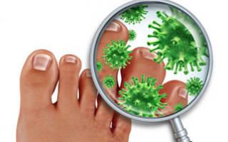 Чем лечить грибок ногтей на ногах в домашних условиях