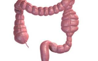 Как определить и вылечить непроходимость кишечника