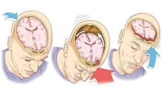 Признаки сотрясения мозга после тяжелой, средней и легкой травмы головы