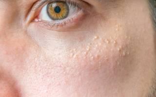 Белые точки на лице: как убрать и чем лечить