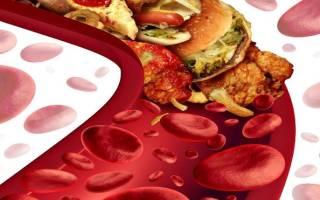 Лечение повышенного холестерина – препараты для снижения. Как лечить повышенный холестерин народными методами