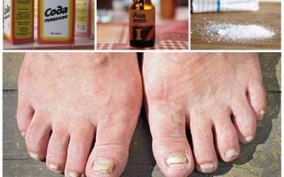 Народное средство от грибка на ногах