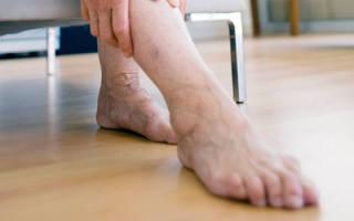 Симптомы тромба в ноге: как распознать отрыв