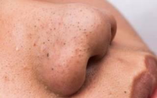 Как быстро уменьшить большие поры на носу