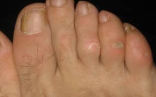 Сухая мозоль на пальце ноги: лечение
