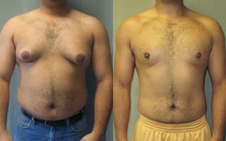 Увеличение грудных желез у мужчин – причины, лечение без операции и показания к хирургическому вмешательству