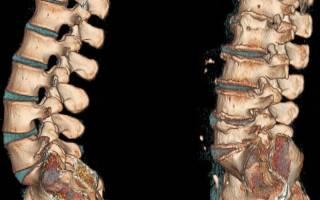 Массаж спины при остеохондрозе шейного, грудного и поясничного отдела – польза для лечения и профилактики