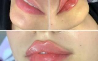 Гиалуроновая кислота в губы – плюсы и минусы
