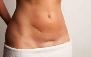 Упражнения после кесарева сечения для похудения живота
