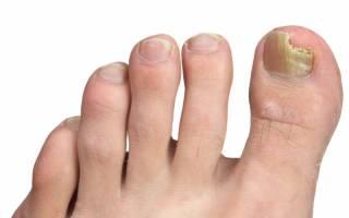 Как быстро избавиться от грибка ногтей: эффективные методы и средства для лечения