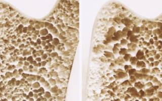 Остеопороз у пожилых людей – причины возникновения, симптомы, диагностика, лечение, гимнастика и питание