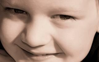 Белый налет на губах у ребенка: причины и лечение