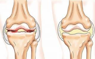 Лечение гипертонии при подагре: препараты при повышенном давлении