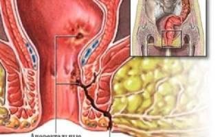 Свищ прямой кишки – причины возникновения, симптомы, диагностика, лечение препаратами и операция