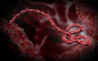 Вирус Эбола – симптомы и лечение. Причины возникновения и способы заражения геморрагической лихорадкой Эбола