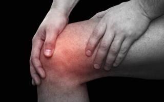 Лечение артроза коленного сустава 2 степени: эффективные методы и рецепты