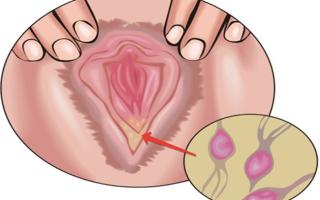 Что такое трихомонада, симптомы и лечение