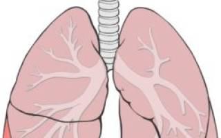 Воспаление легких – симптомы у детей и первые признаки