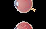 Глаукома – причины, симптомы, лечение и профилактика заболевания глаз