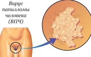 ВПЧ 16 типа у женщин – причины возникновения, симптомы, диагностика, проявления и медикаменты для лечения