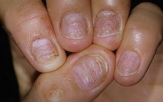 Поражение ногтей псориазом – причины, лечение мазями и народными средствами